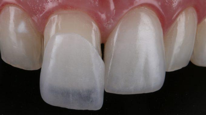 793deeb4da26b O que são Lentes de Contato Dental  – Felicidente